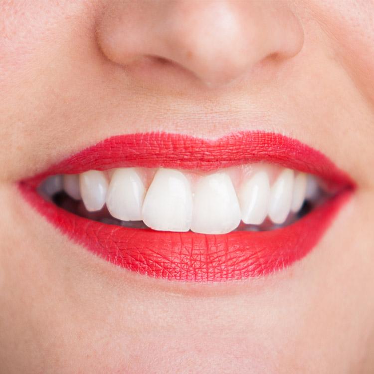 Mund mit gebleachten Zähnen - Bleaching bei Zahnarzt Freiburg mundharmonie Zahngesundheit
