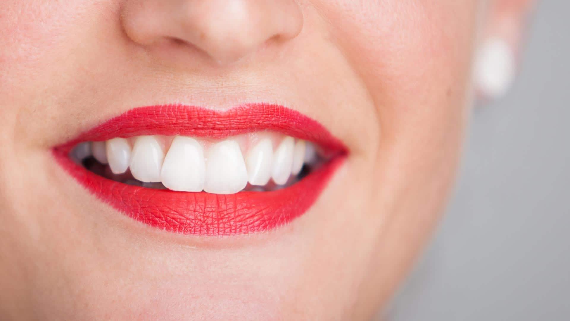 Zähne Bleaching bei mundharmonie Zahngesundheit - Zahnarzt in Freiburg Tiengen